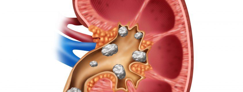 Antibiotika-kan-oege-risikoen-for-nyresten